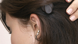 Med-El Bone-Anchored Hearing Aid