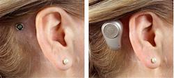 Oticon Ponto Bone-Anchored Hearing System